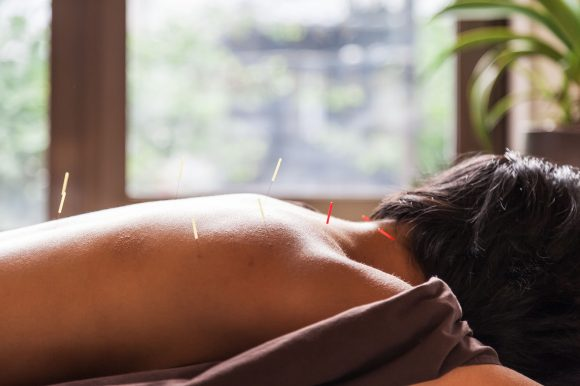 Is Acupuncture Safe?